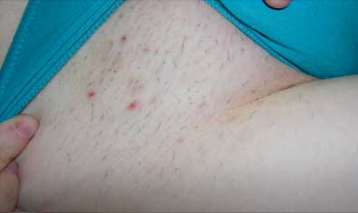 The itchy after-effects of hair removal
